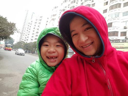 Nguyễn Đức Long - AD11300 - Ít răng vẫn tự tin cười tươi-2