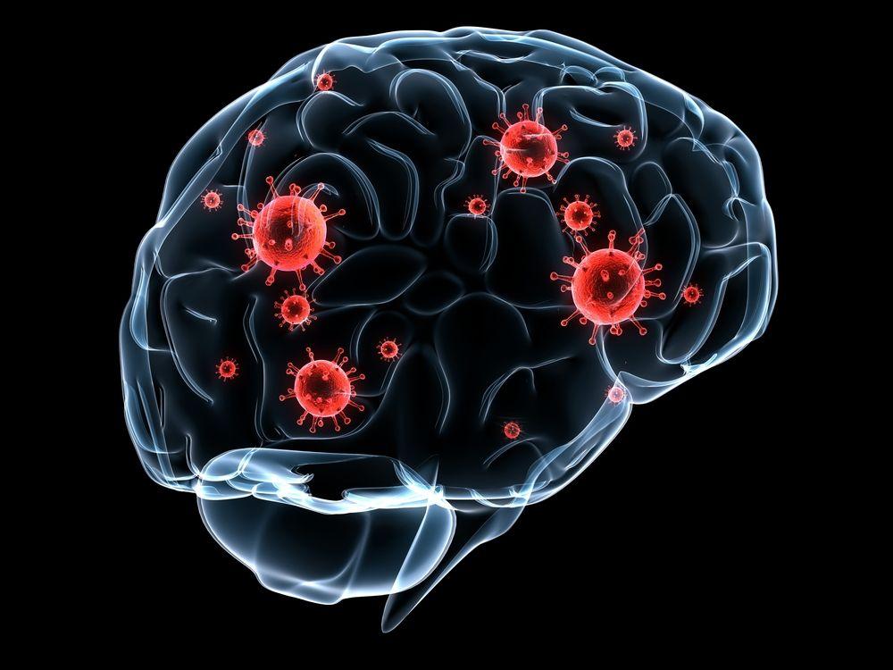 9 dấu hiệu của bệnh giang mai cả hai giới đều phải biết-2