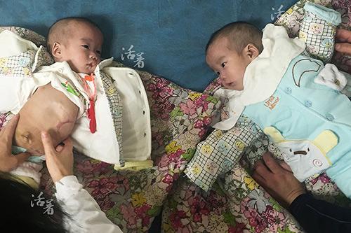 Xúc động khoảnh khắc hai bé sơ sinh dính liền được tách rời-2