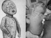 Bà bầu - Bé sơ sinh qua đời vì mắc bệnh về da hiếm gặp