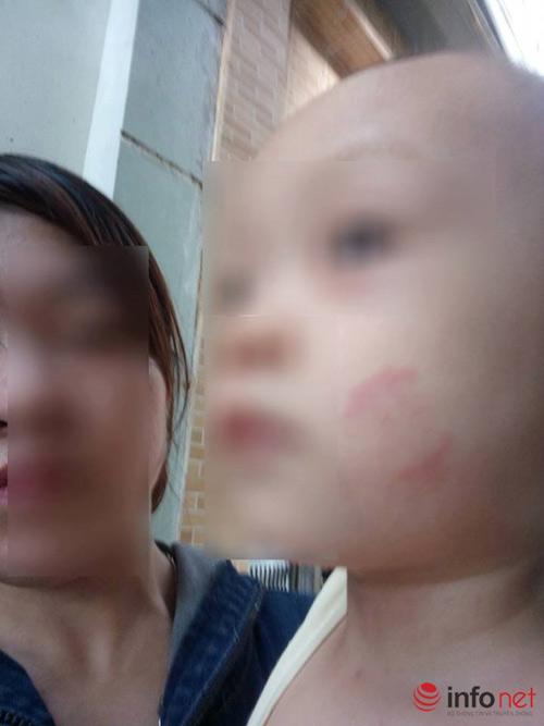 be 20 thang tuoi bi can tim nguoi: pho phong gd&dt len tieng - 2