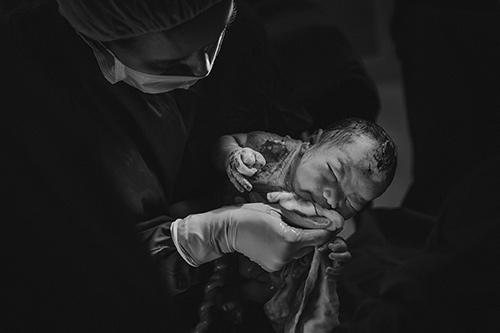 Ngắm chi tiết ca sinh mổ tuyệt đẹp của mẹ bầu Hà Nội-10
