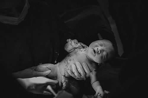 Ngắm chi tiết ca sinh mổ tuyệt đẹp của mẹ bầu Hà Nội-11