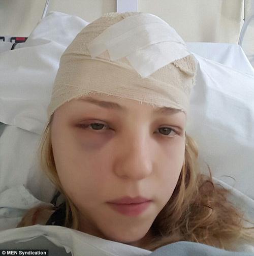 Cô gái 27 tuổi mắc 4 loại ung thư khác nhau trong vòng 2 năm-2