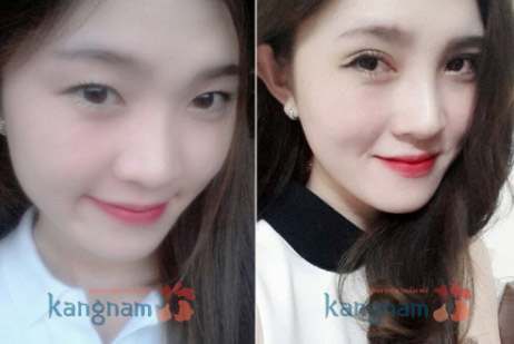 quy trinh bien hoa sac dep korean beauty triangle o kangnam - 4