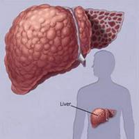 Người bệnh gan cần ăn uống thế nào?