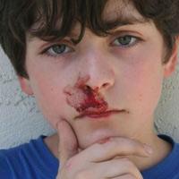 Xử lý bệnh chảy máu cam ở trẻ