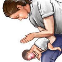 Cách xử trí khi trẻ bị hít sặc