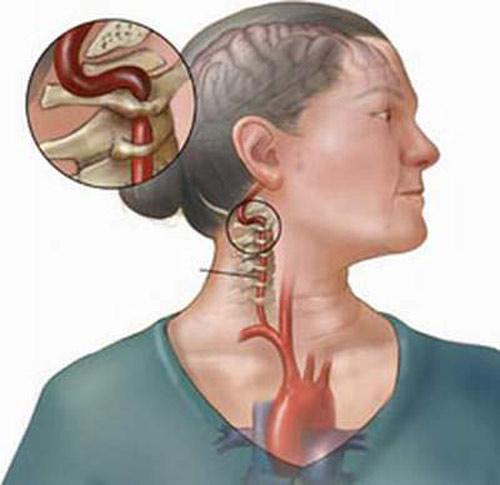 Nhận biết những dạng đau đầu ác tính - 1