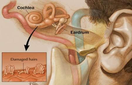 Cải thiện chứng ù tai - 1