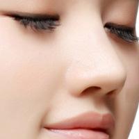 Nâng mũi không phẫu thuật với Radiesse
