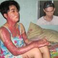 Tin tức - Chồng tạt xăng đốt vợ: Tâm sự đắng lòng của người vợ