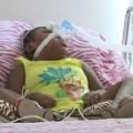 Tin tức - Bé gái không não sống sót suốt 6 năm