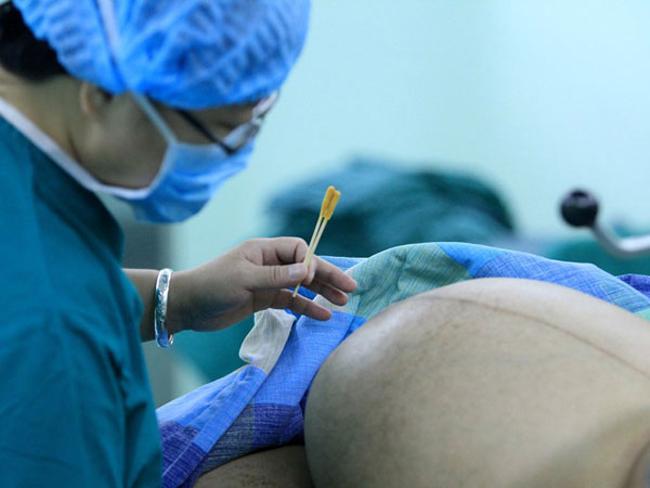 Ca sinh nở diễn ra tại bệnh viện thành phố Tam Hiệp Môn, tỉnh Hồ Nam, Trung Quốc.