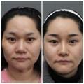 Làm đẹp - Bí mật sau những cuộc PTTM xứ Hàn