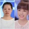 Làm đẹp - PTTM lung linh cho cô gái hỏng hàm răng