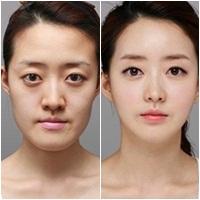 Cơn cuồng 'dao kéo' của phụ nữ Hàn