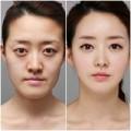 Làm đẹp - Cơn cuồng 'dao kéo' của phụ nữ Hàn
