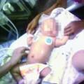 Tin tức - Bé gái 2 tháng bị bố đâm 4 kim khâu vào người