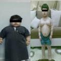 Tin tức - Bé trai 2 tuổi phẫu thuật cắt dạ dày để giảm cân