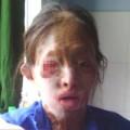 Tin tức - Người phụ nữ bạo bệnh bị chồng bỏ vì tội… không biết đẻ!