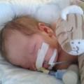Tin tức - Kỳ lạ bé gái sinh ra không có mũi