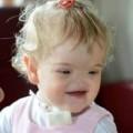 Sức khỏe - Xúc động với nụ cười của bé gái không có mũi