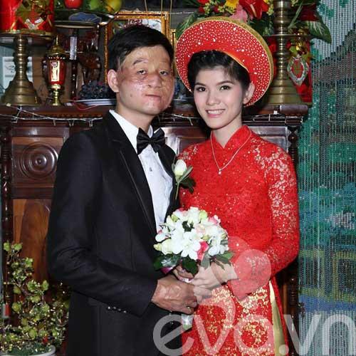 vo xinh chong xau: tinh yeu dau the tinh tien - 11