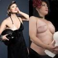 Làm đẹp - Hình ảnh vòng 1 của những phụ nữ ung thư vú