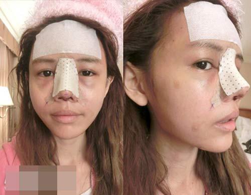 Cận cảnh mũi biến đổi từng ngày sau khi nâng-3