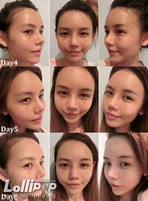 Cận cảnh mũi biến đổi từng ngày sau khi nâng-7