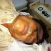 Tin tức - Cấp cứu người bị lưỡi cưa xuyên qua mắt đâm vào sọ
