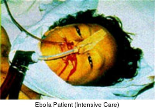 ron nguoi hinh anh dai dich ebola tren the gioi - 3