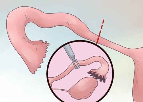 Nhận biết sớm mang thai ngoài tử cung - 6