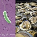Tin tức - Cảnh báo tử vong do vi khuẩn ăn thịt người tắm biển