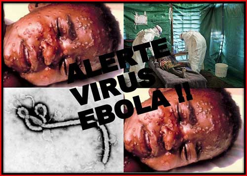 dai dich ebola bung phat la do ngheo kho, y duc - 1