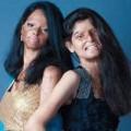 Tin tức - Cảm động với bộ ảnh của các cô gái bị tạt axit