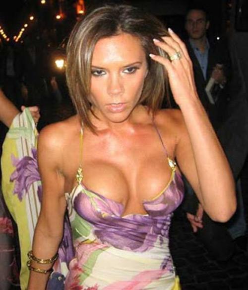 'Khủng khiếp' hình ảnh xấu nhất của Victoria Beckham-3