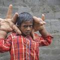 Làm mẹ - Kinh ngạc: Bé 8 tuổi có bàn tay lớn hơn đầu người