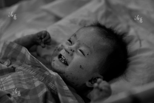 Xót xa em bé da bóng nước bị người thân bỏ rơi