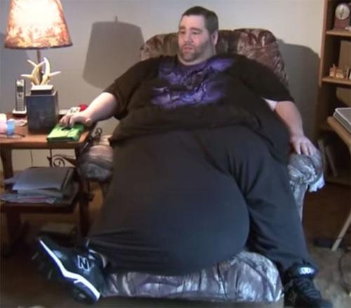 Người đàn ông có tinh hoàn nặng 59kg được phẫu thuật-1
