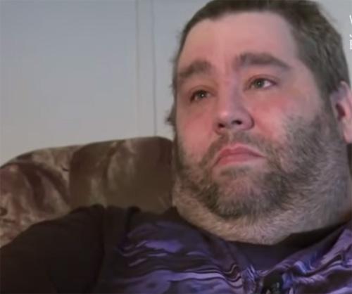 Người đàn ông có tinh hoàn nặng 59kg được phẫu thuật-2
