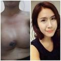 Làm đẹp - 'Hoảng hồn' hot girl xinh đẹp bị dính ngực vì thẩm mỹ