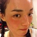 Làm đẹp - Thư Kỳ mặt đỏ ửng, sưng vù vì dị ứng mỹ phẩm