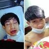 Thành viên nhóm HKT bị ngã dập môi