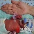 Tin tức - Sức sống mãnh liệt của bé gái sinh non 850g