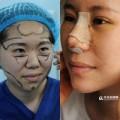 Làm đẹp - Phẫu thuật toàn bộ gương mặt để… 'đỡ phải trang điểm'