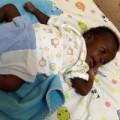 Tin tức - Cắt bỏ tứ chi của thai nhi song sinh trên cơ thể bé trai