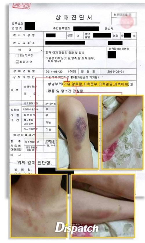 kim hyun joong chinh thuc xin loi ban gai cu - 2