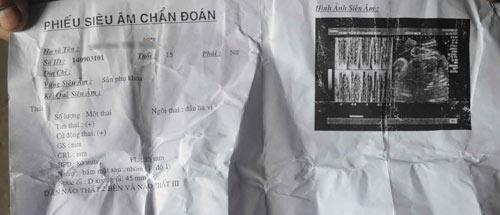bat nghi can lam be gai 15 tuoi mang thai - 1